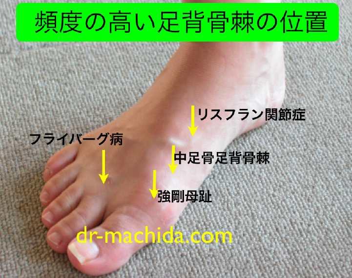 甲 外側 痛い が 足 の の