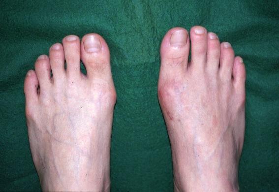 外反母趾手術に関する質問集